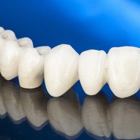 Fixed Dentures (Bridges)